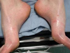 Zastavte nadměrné pocení nohou