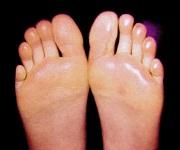 Příčiny pocení nohou
